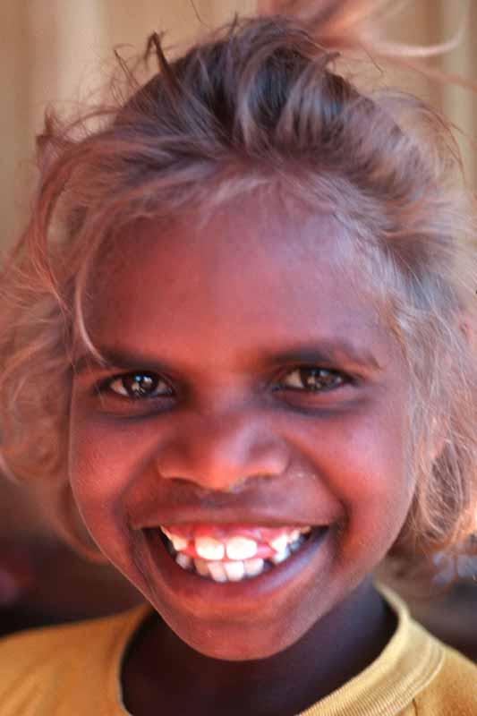 Aborigines and Melanesians: Naturally Blonde Hair and Dark ...